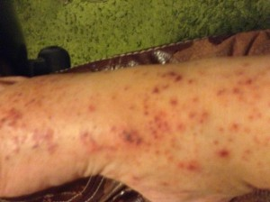 image of foot rash first week